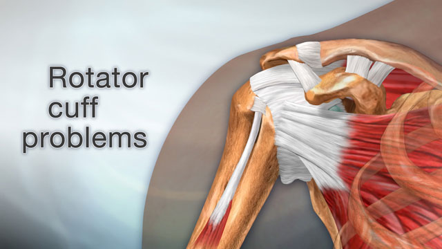 Arm Pain From Torn Rotator Cuff