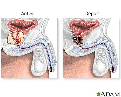 cancer de prostata pode matar medicament anti paraziti
